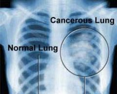 CT detects twice as many lung cancers as X-ray at initial screening exam